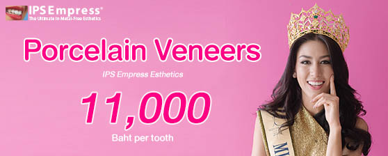 Thailand Dental Veneers