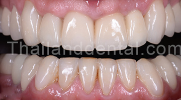 Dental Crown Cases