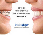 Thailand Dental Invisalign
